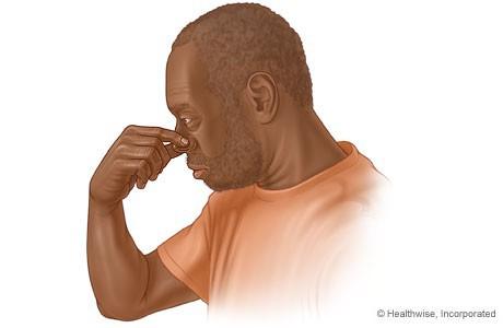 Ngả phía trước hay ngửa đầu ra sau khi chảy máu cam: Không biết khiến bạn có thể xử lý sai - Ảnh 1.