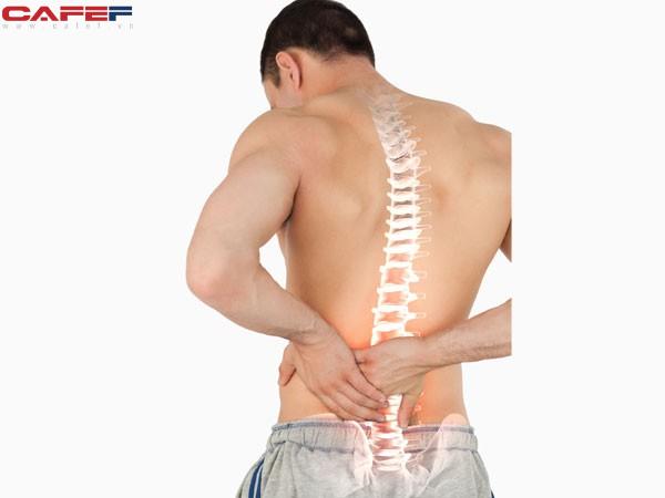Các nhân tố làm tăng nguy cơ loãng xương ở nam giới và cách phòng tránh - Ảnh 1.