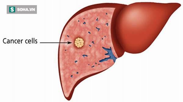 Bác sĩ Mỹ chỉ ra 8 đối tượng có nguy cơ cao bị ung thư gan: Nhiều người bị mà không biết - Ảnh 1.
