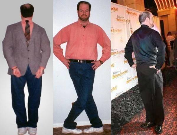 Góc siêu năng lực: Người đàn ông duy nhất trên thế giới có thể bẻ ngược bàn chân 180 độ rồi đi lại như bình thường - Ảnh 3.