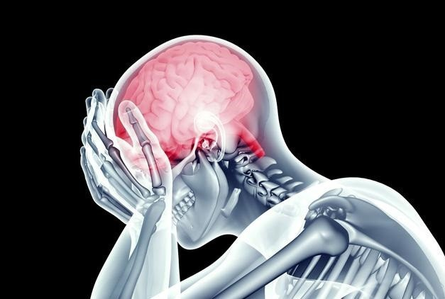 Người đàn ông bị máu nhồi máu não, liệt nửa người khi đang ở tuổi sung sức chỉ vì thói quen hàng triệu người mắc  - Ảnh 1.