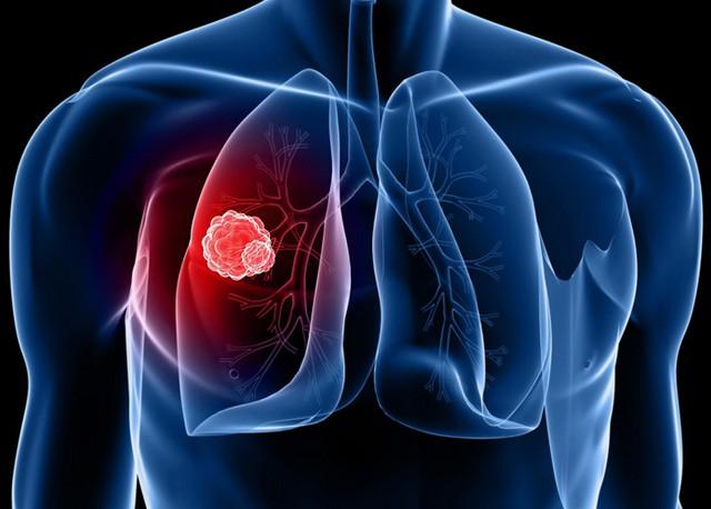 Thông tin ít biết về căn bệnh ung thư khiến người Việt chết nhiều nhất - Ảnh 1.