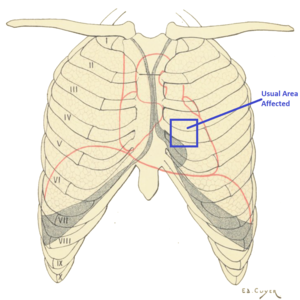 Cái cảm giác đau nhói trước ngực, nếu không phải đau tim thì là gì vậy? - Ảnh 2.