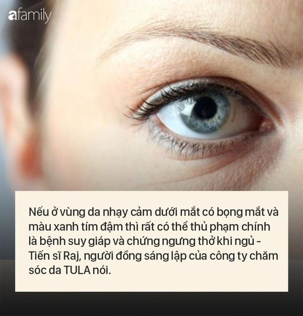 """8 dấu hiệu cảnh báo bệnh được """"khắc"""" rất rõ trên khuôn mặt của bạn - Ảnh 4."""