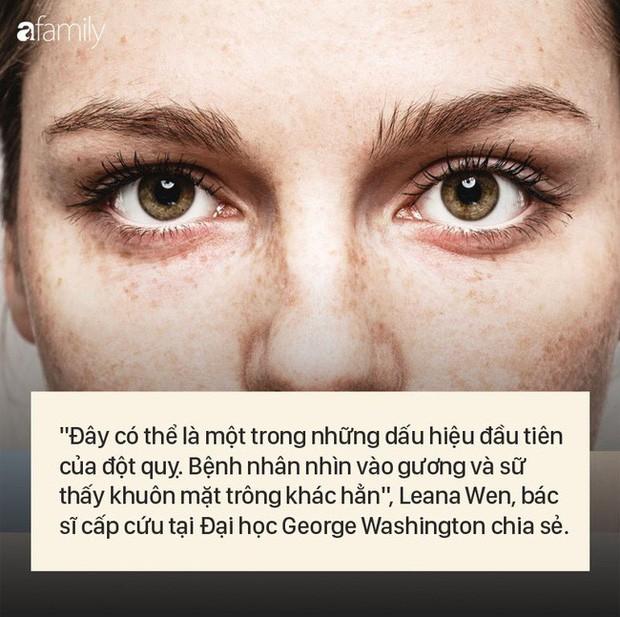 """8 dấu hiệu cảnh báo bệnh được """"khắc"""" rất rõ trên khuôn mặt của bạn - Ảnh 5."""