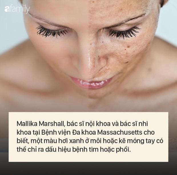 """8 dấu hiệu cảnh báo bệnh được """"khắc"""" rất rõ trên khuôn mặt của bạn - Ảnh 6."""