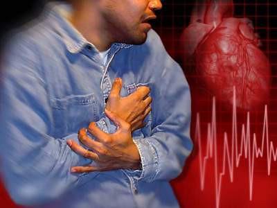 Lối sống rất tệ làm gia tăng bệnh đột quỵ: Rất nhiều bạn trẻ hồn nhiên mắc mà không biết - Ảnh 1.