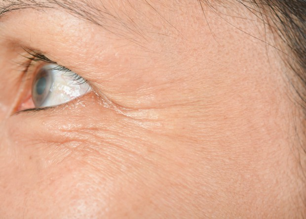 """Không báo hiệu tuổi già, những nếp nhăn trên khuôn mặt báo hiệu sức khỏe đang """"xuống cấp"""" nghiêm trọng - Ảnh 7."""