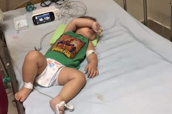 Chỉ trong nửa tháng, một gia đình tại Hà Nội mất hai con nhỏ vì liên quan đến bệnh whitmore - Ảnh 1.