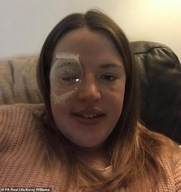 Thấy nhiều đốm trắng nhấp nháy trong phòng ngủ, cô gái người Anh đi khám và không ngờ mình đã bị ung thư mắt - Ảnh 2.