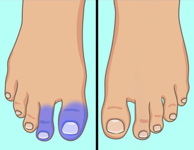 Xuất hiện 6 dấu hiệu này ở chân, bạn nên sớm đi gặp bác sĩ bởi sức khỏe đang gặp vấn đề nghiêm trọng - Ảnh 2.