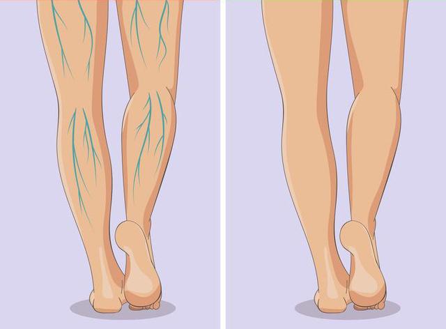 Xuất hiện 6 dấu hiệu này ở chân, bạn nên sớm đi gặp bác sĩ bởi sức khỏe đang gặp vấn đề nghiêm trọng - Ảnh 5.