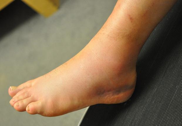 Cẩn thận với 4 dấu hiệu ở chân cảnh báo căn bệnh dễ gây đột tử rất nhanh - Ảnh 1.