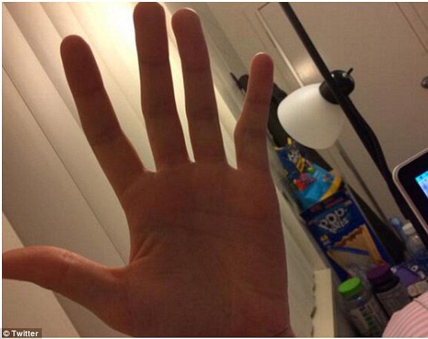 Ngón tay cong vẹo, biến dạng: Tình trạng dễ thấy ở những người dùng điện thoại quá lâu, quá nhiều - Ảnh 3.
