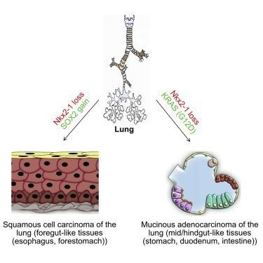 Sự kì dị của ung thư: Khi lá phổi bị biến thành dạ dày và ruột - Ảnh 3.