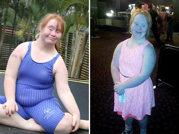 Người mẫu trẻ mắc bệnh Down từng thay đổi chuẩn mực cái đẹp thế giới 4 năm trước giờ đây đã có bước tiến không ngờ, mơ thành thiên thần Victorias Secret - Ảnh 2.