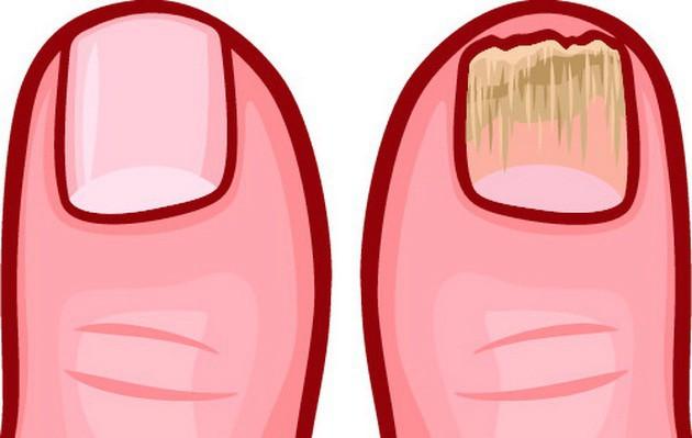 Cơ thể bạn đang chất chứa đầy độc tố nếu gặp phải hàng loạt triệu chứng bất thường sau - Ảnh 1.