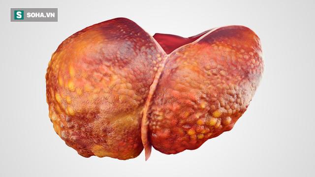 PCT Hội Gan Mật Việt Nam: Làm được 3 điều này, ung thư gan sẽ khó có thể gõ cửa - Ảnh 1.