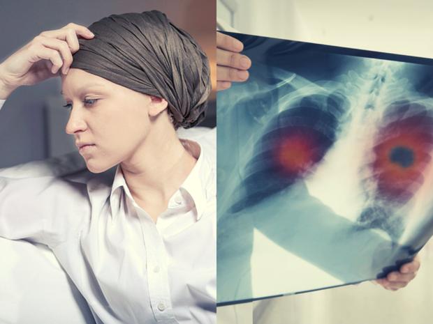 Cô gái 28 tuổi bị ung thư phổi giai đoạn 4, nguyên nhân chính là thứ mà toàn nhân loại đang phải đối diện, tiếp xúc hàng ngày - Ảnh 1.