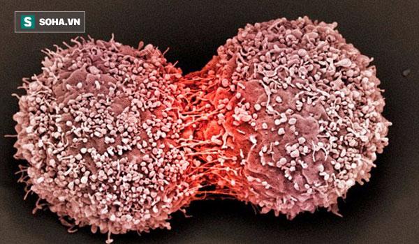 Những thực phẩm thúc đẩy tế bào ung thư: PCT Hội Ung thư HN khuyên người bệnh tránh xa - Ảnh 1.