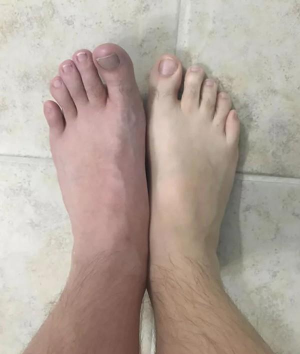 Vì thói quen đi chân trần trong phòng tắm mà người đàn ông này bị vi khuẩn ăn thịt người tấn công  - Ảnh 5.