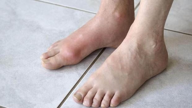 Cậu bé 13 tuổi mắc bệnh gout, nguyên nhân đến từ thức uống mà hầu hết đứa trẻ nào cũng ưa thích - Ảnh 1.