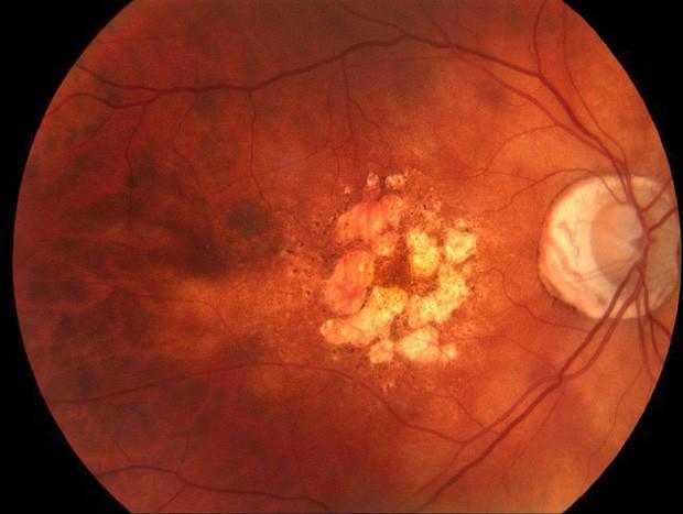 Không khí ô nhiễm làm tổn thương tế bào mắt, đeo kính bảo hộ cũng không có tác dụng ngăn ngừa - Ảnh 2.