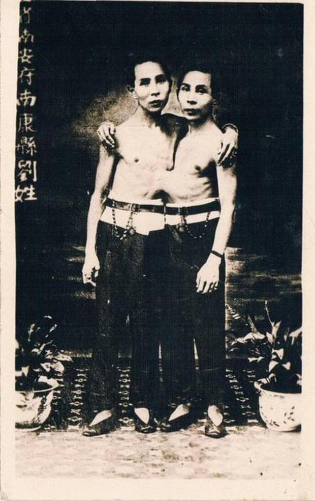 Cuộc sống kì lạ của cặp song sinh dính liền nhau nhưng vẫn mỗi người một vợ, sinh liền tù tì 21 người con - Ảnh 2.