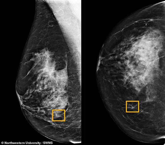 Chiến thắng 6 bác sĩ, trí tuệ nhân tạo xác định ung thư vú chính xác, mở ra cơ hội sống cho hàng ngàn người - Ảnh 1.