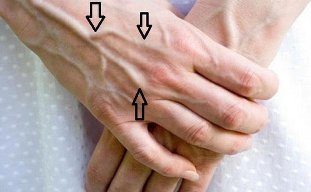 Người có chức năng gan ổn định sẽ không có 4 điểm sau trên đôi tay, cùng xem bạn có điểm nào hay không - Ảnh 3.