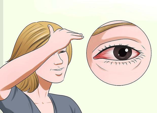 Vì sao mắt cứ bị đỏ ngầu sau khi tỉnh dậy? Đó cũng là cảnh báo sức khoẻ bạn cần chú ý - Ảnh 4.