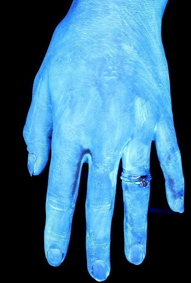 Hình ảnh gây sốc cho thấy bàn tay bạn nhiều vi khuẩn như thế nào và vai trò của việc rửa tay đúng kỹ thuật trong phòng tránh COVID-19 - Ảnh 1.