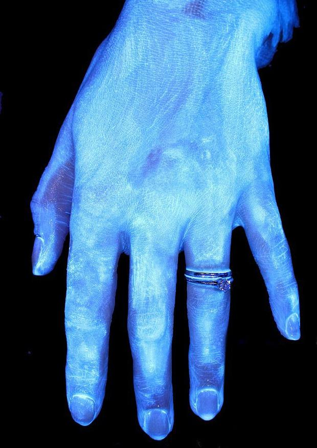 Hình ảnh gây sốc cho thấy bàn tay bạn nhiều vi khuẩn như thế nào và vai trò của việc rửa tay đúng kỹ thuật trong phòng tránh COVID-19 - Ảnh 2.