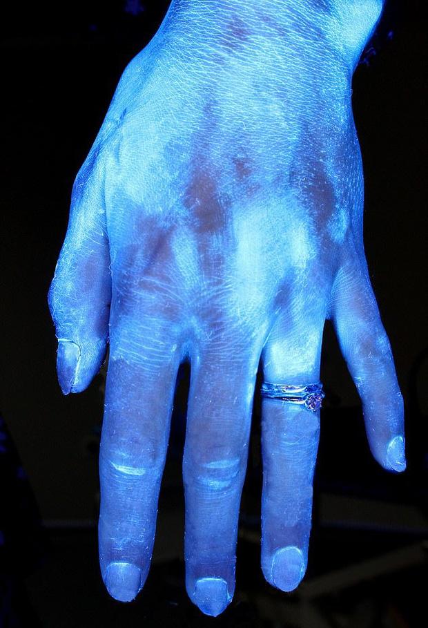 Hình ảnh gây sốc cho thấy bàn tay bạn nhiều vi khuẩn như thế nào và vai trò của việc rửa tay đúng kỹ thuật trong phòng tránh COVID-19 - Ảnh 3.