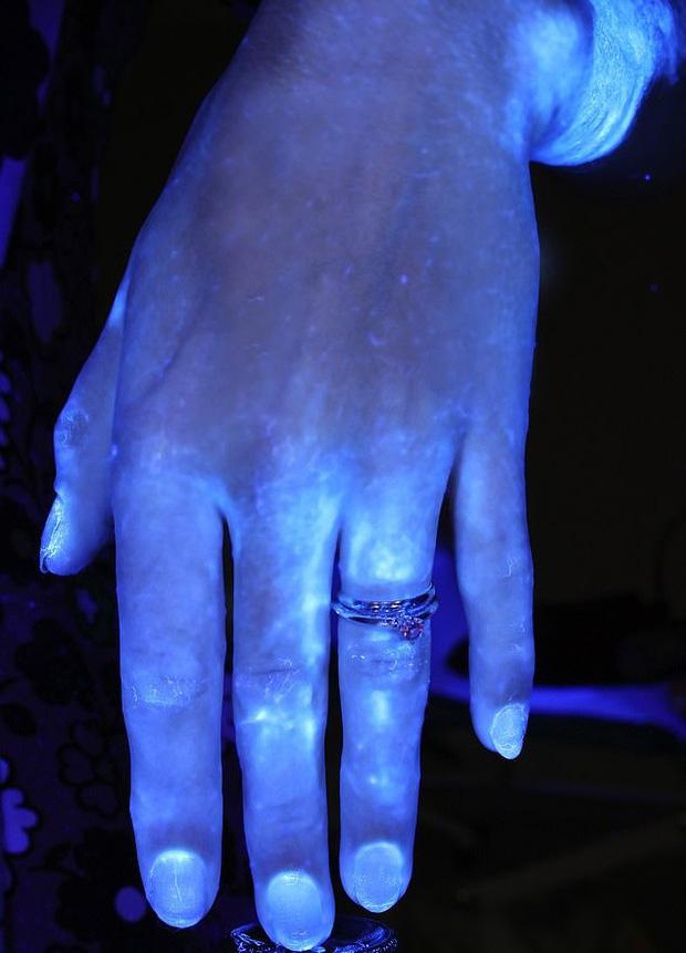 Hình ảnh gây sốc cho thấy bàn tay bạn nhiều vi khuẩn như thế nào và vai trò của việc rửa tay đúng kỹ thuật trong phòng tránh COVID-19 - Ảnh 4.
