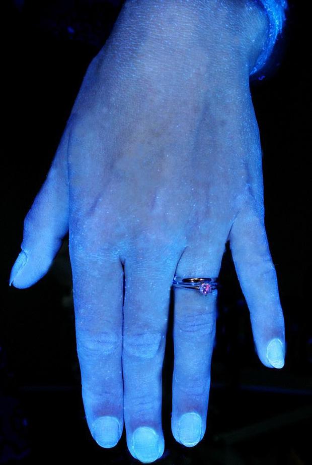 Hình ảnh gây sốc cho thấy bàn tay bạn nhiều vi khuẩn như thế nào và vai trò của việc rửa tay đúng kỹ thuật trong phòng tránh COVID-19 - Ảnh 6.