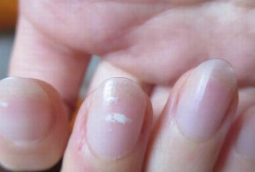 4 dấu hiệu lạ trên tay có thể là dấu hiệu cảnh báo thận của bạn có thể đang suy yếu, cần theo dõi thêm để bảo vệ sức khỏe - Ảnh 2.