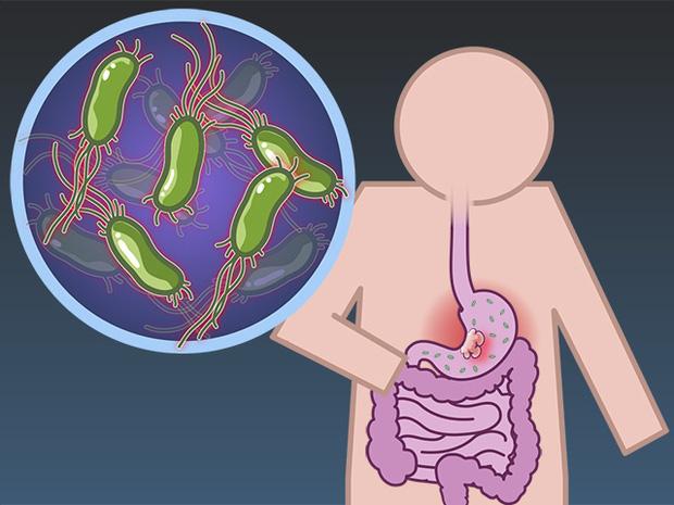 6 nhóm người có nguy cơ cao mắc bệnh ung thư dạ dày, cần chủ động đi nội soi ngay từ sớm - Ảnh 2.