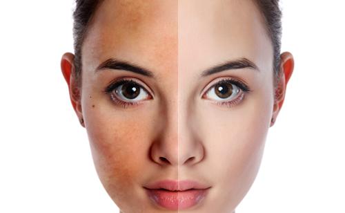Da mặt bỗng đổi sang những màu sắc bất thường này nghĩa là nội tạng của bạn đang cầu cứu: Số 3 rất nhiều người chủ quan bỏ qua!  - Ảnh 3.