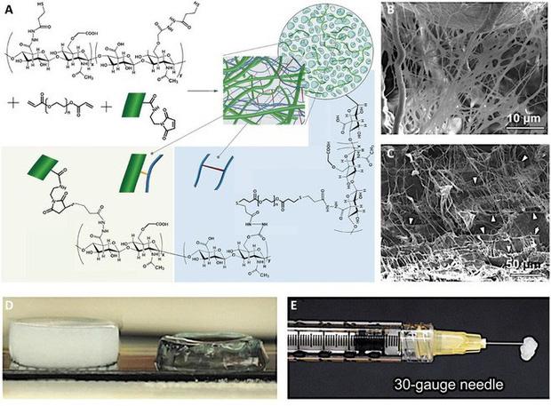 Đột phá: Các nhà khoa học phát minh ra loại gel có thể hàn gắn mọi vết thương trên cơ thể và trong cả nội tạng - Ảnh 3.