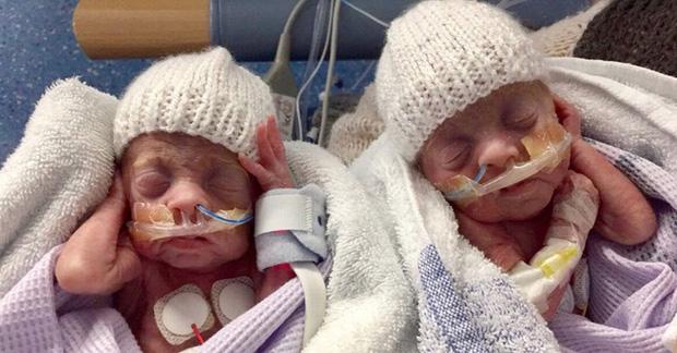 Cặp anh em sinh đôi sinh non từng chỉ nhỏ như chuột nhưng vẫn sống sót khiến các bác sĩ phải ngỡ ngàng giờ ra sao? - Ảnh 1.