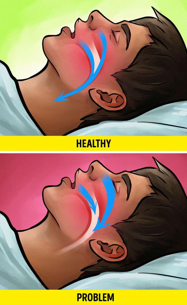 Nếu đang ngủ nhiều hơn 10 tiếng/ngày thì nên cẩn thận vì có thể bạn đang gặp phải những vấn đề sức khỏe sau - Ảnh 5.