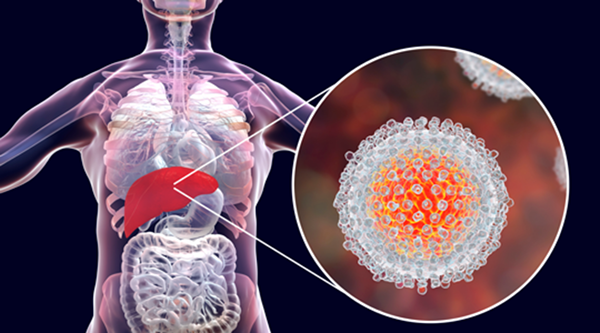 1/6 bệnh nhân ung thư có liên quan đến viêm: Nếu gặp tình trạng viêm ở 3 bộ phận này, tuyệt đối đừng chủ quan - Ảnh 2.