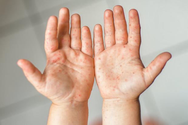 Hiện đang có dịch tay chân miệng, hãy nắm rõ 6 lưu ý của Bộ Y tế để phòng tránh và nhận biết bệnh kịp thời - Ảnh 2.