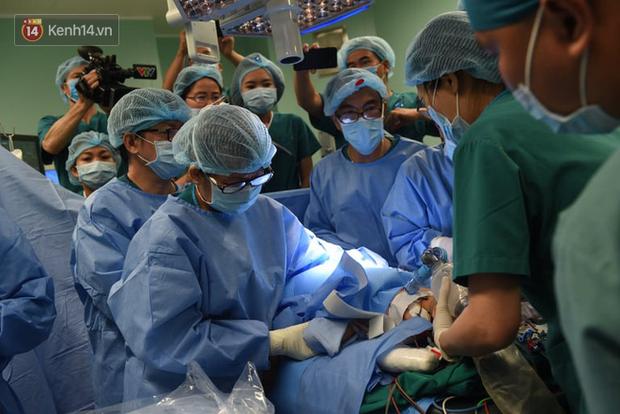 Ca phẫu thuật tách rời cặp song sinh đã thành công, đưa Trúc Nhi - Diệu Nhi ra khỏi phòng mổ - Ảnh 9.
