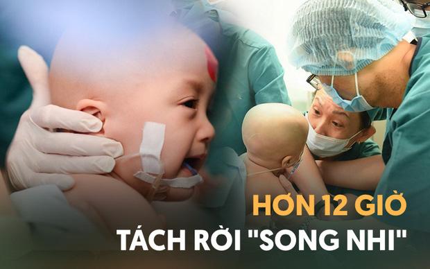 Ảnh siêu âm cặp song sinh dính liền và lời nhắn nhủ xúc động của bác sĩ 1 năm trước: Tụi con sẽ được sinh ra bởi lòng can trường của cha mẹ con - Ảnh 1.