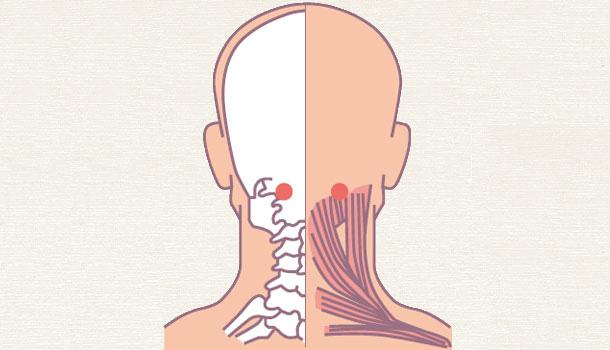 [Bấm huyệt mỗi ngày] Huyệt phong trì – cải thiện ngay những căn bệnh ở vùng đầu cổ - Ảnh 3.