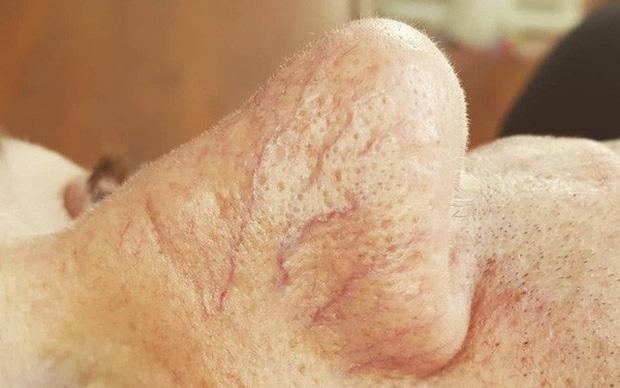 Gan bị tổn thương sẽ thông báo cho bạn biết qua 4 tình trạng khác lạ xuất hiện trên da - Ảnh 3.