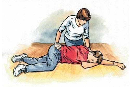Bác sĩ BV Đại học Y Hà Nội: 5 nguyên tắc vàng phải nhớ khi cấp cứu người bị tai nạn giao thông - Ảnh 1.