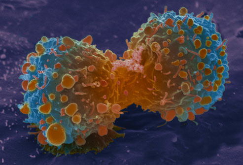 WebMD chỉ mặt thủ phạm gây ra 9/10 ca tử vong do ung thư phổi: Cần từ bỏ và tránh xa! - Ảnh 4.